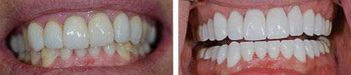 Dental Crowns- Before & After