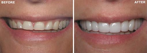 Porcelain Veneers- Before & After