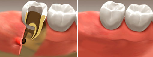 Kingston Endodontics